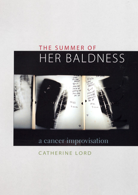 Cover of The Summer of Her Baldness